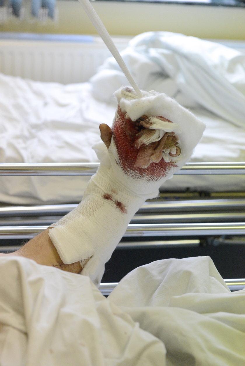 Lekarz cudotwórca ocalił mi rękę