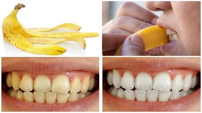 La peau de banane contient des minéraux qui aident au blanchiment des dents [ece-auto-gen]