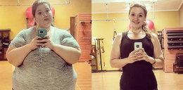 """Zrzuciła 141 kilogramów! Pozostała jednak szpetna """"pamiątka"""""""