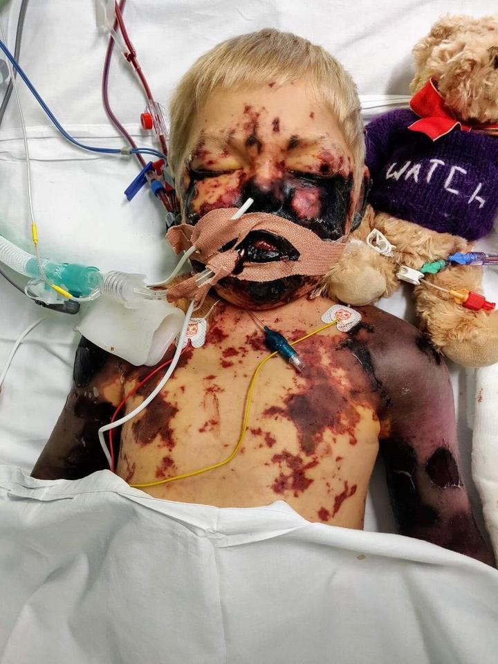 Zrobili zdjęcie 4-letniemu synkowi tuż przed śmiercią. Mieli powód, by je rozpowszechnić