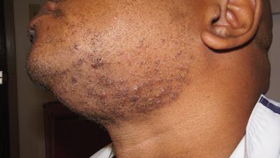 5 fast ways to treat razor bumps at home