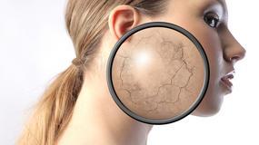 Gdzie leczyć atopowe zapalenie skóry?