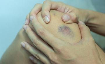piros kék folt a lábán mi ez)