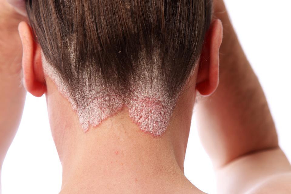 wypadanie włosów chorob
