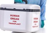 transplantacija i doniranje organa