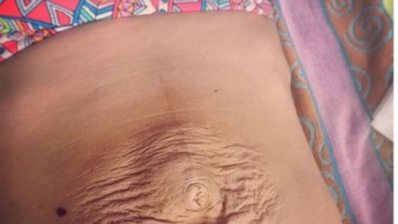 Tummy Tuck Before And After Pictures With Stretch Markss