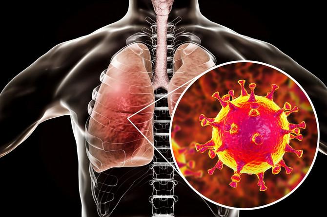 Koji su to glavni simptomi korona virusa?