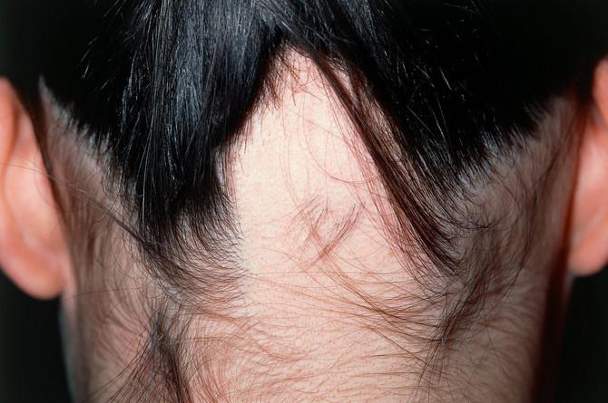 Masiranje temena može da dovede do opadanja kose