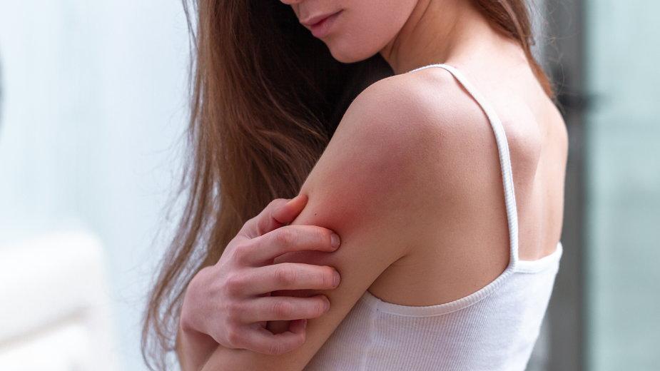 Cholestaza – przyczyny, objawy, leczenie