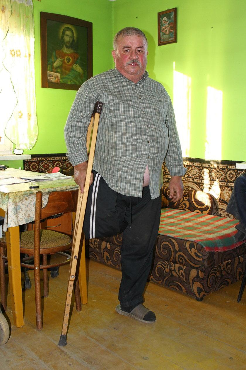Stracił nogę przez kreta
