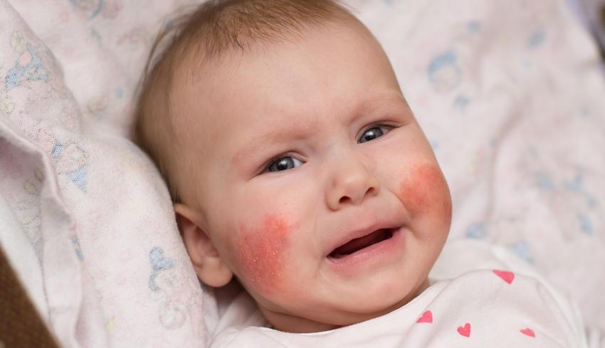 vörös foltok az arcon síráskor)
