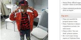 Chłopiec postrzelony w twarz miał 130 kulek w głowie