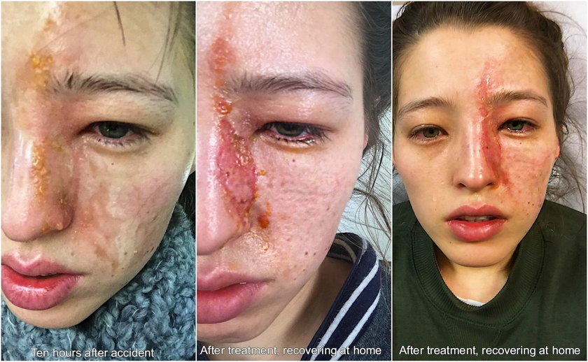 24-latka omal nie straciła wzroku. Zawiniło popularne urządzenie