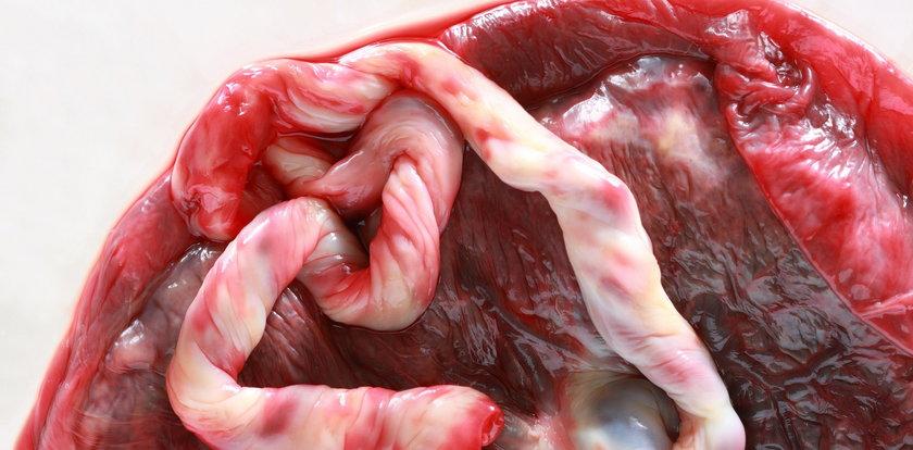 Kobiety zjadają części swojego ciała. Eksperci ostrzegają