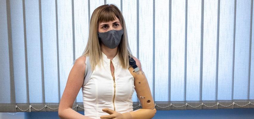 """Alona straciła rękę w pracy. Maszyna zmiażdżyła ją i """"ugotowała"""". Została tylko kość"""