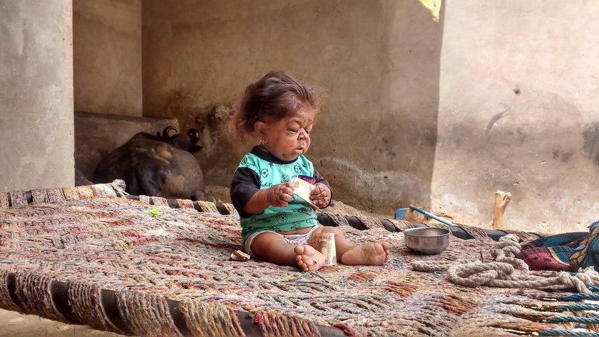 Indie. 23-letni Manpreet Singh wygląda jak niemowlę