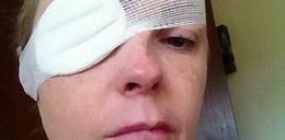 Sparaliżowało jej twarz. Wszystko przez kleszcza