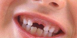 Włoch stracił zęby na basenie w Płocku! Wstawili mu je