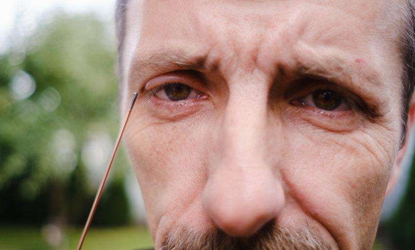 Kawałek tego drutu wbił się panu Grzegorzowi w sam środek oka. Uratowali go lekarze ze szpitala w Zawierciu