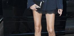 Przerażające nogi polskiej gwiazdy