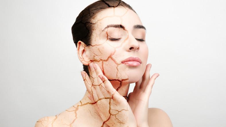 Problemy z suchą skórą można powstrzymać.