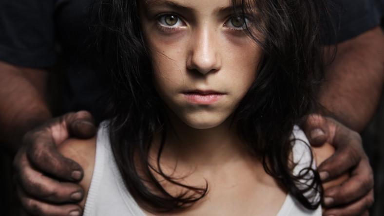 Dziecięca twarz biedy