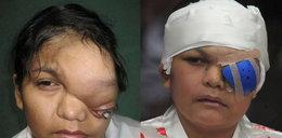 Miała 1,5 kg nowotworu na oku!
