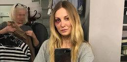 Joanna Moro z podbitym okiem. Co się stało?