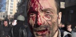 Ukraina spłynęła krwią