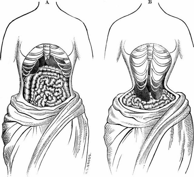 Corsets were the old-fashioned versions of waist trainers and were responsible for shifting vital organs and causing health problems [Credit: Forbes]