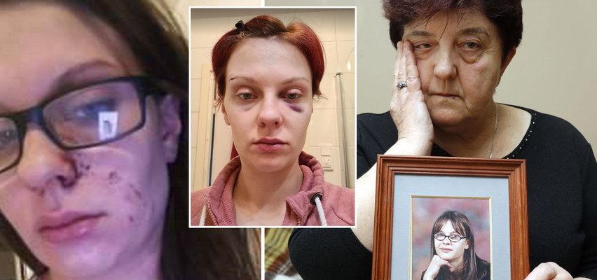 """Wstrząsające zdjęcia zaginionej w Szwecji Polki. Beata Ratzman wysłała je bliskim na kilka miesięcy przed zniknięciem. """"Tak mnie urządził mąż"""""""