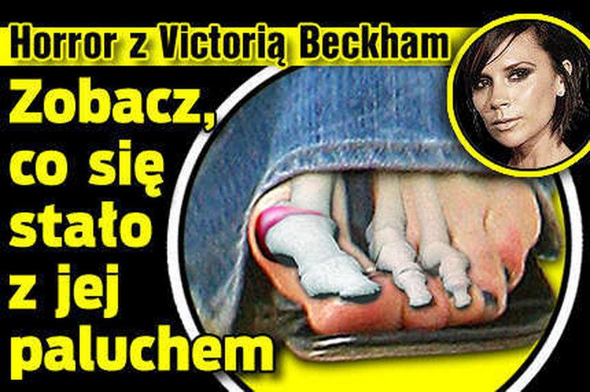 Beckham! Zobacz, co stało się z jej paluchem