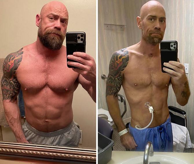 Izgubio je na kilaži, ali se izborio sa koronom