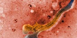 Ta choroba weneryczna powoduje zmiany w mózgu!