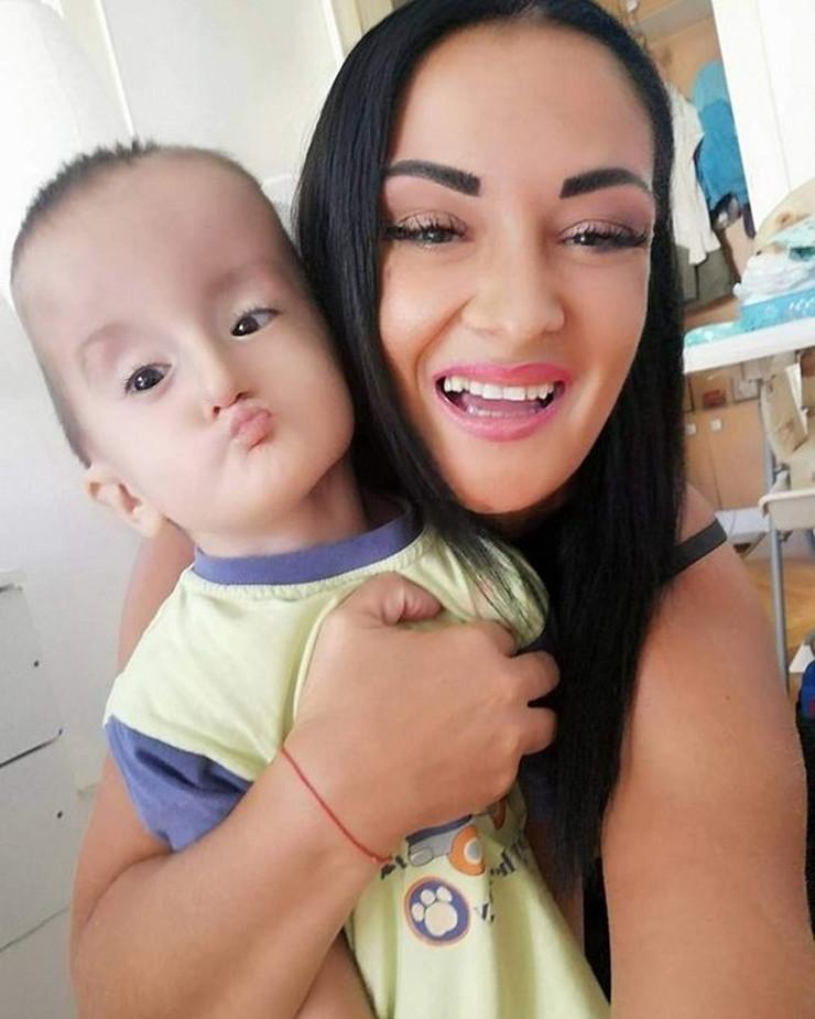 Dečak Luka koji je gluvonem i ima paralizu polovine lica