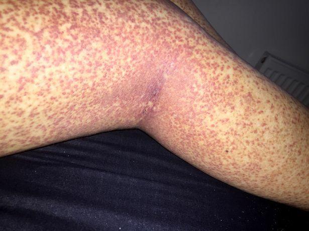 vörös pöttyös kiütés lábain foltok voltak