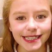 RODITELJI, OPREZ! Devojčica zadobila STRAVIČNE OPEKOTINA zbog popularnog trika sa Jutjuba (VIDEO)