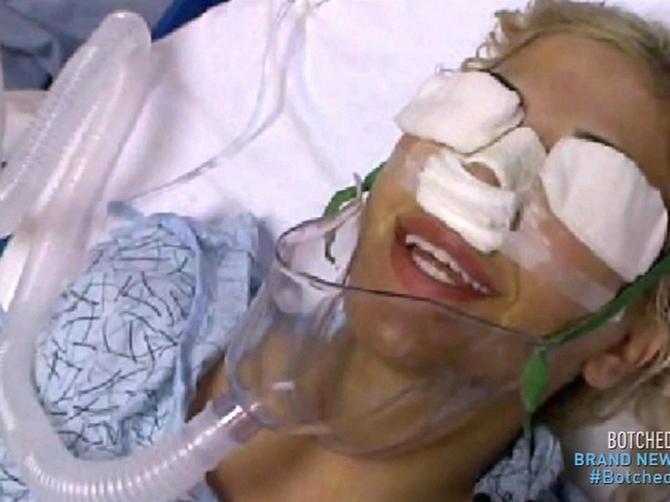 Bila je na 13 operacija da bi izgledala kao Ivanka Tramp i NE ŽELI DA STANE: Danas ima KVRGU na nosu i izgleda OVAKO