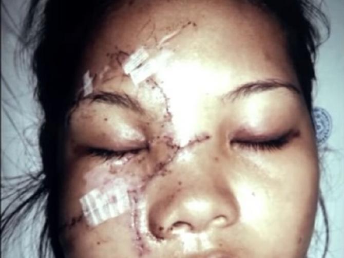 Doživela je strašnu nesreću koja joj je uništila lice: Usledila je OGROMNA transformacija!