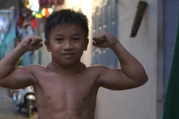 IZGLEDA NEVEROVATNO, A UJEDNO I TUŽNO! Mališan (10) ima telo bodibildera a NE TRENIRA, bolest leži iza ogromnih mišića /VIDEO/