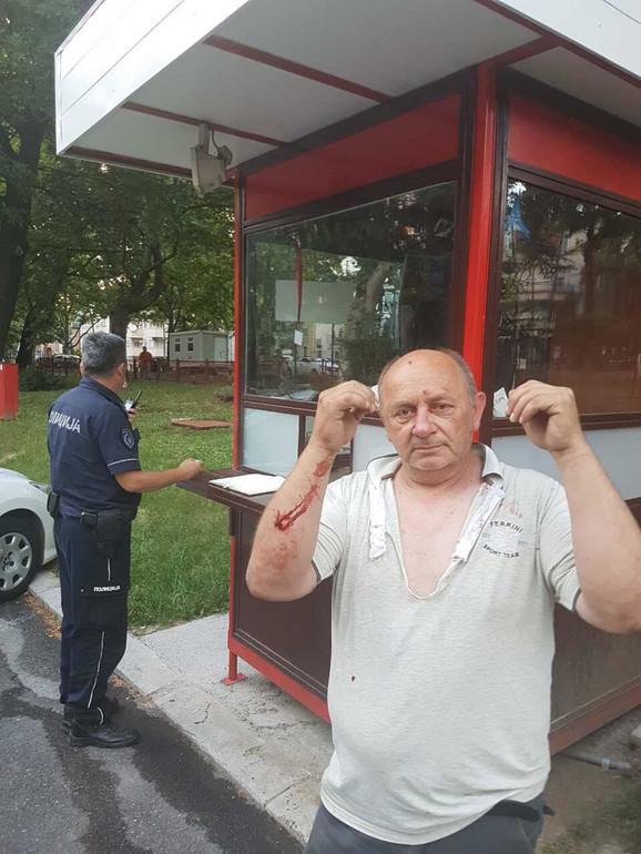 Povređeni Milan Lučić