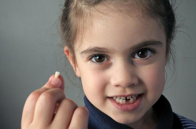 Mlečni zubi ispadaju da bi ih zamenili trajni, ali nekim ljudima se to nikada ne desi