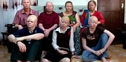 Zamordowali 9-letniego albinosa na amulety