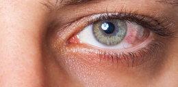 Zgłosiła się ze spuchniętym okiem. Lekarz ją zbadał i... oniemiał