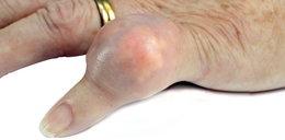 Okropnie spuchł jej mały palec. Wszystko przez kaszel męża
