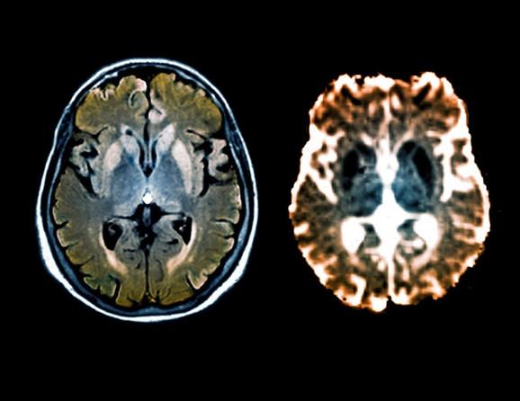 Mozak osobe obolele od KJB