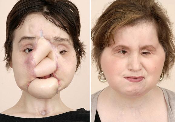 Kejti je 40. osoba na svetu kojoj je presađeno lice