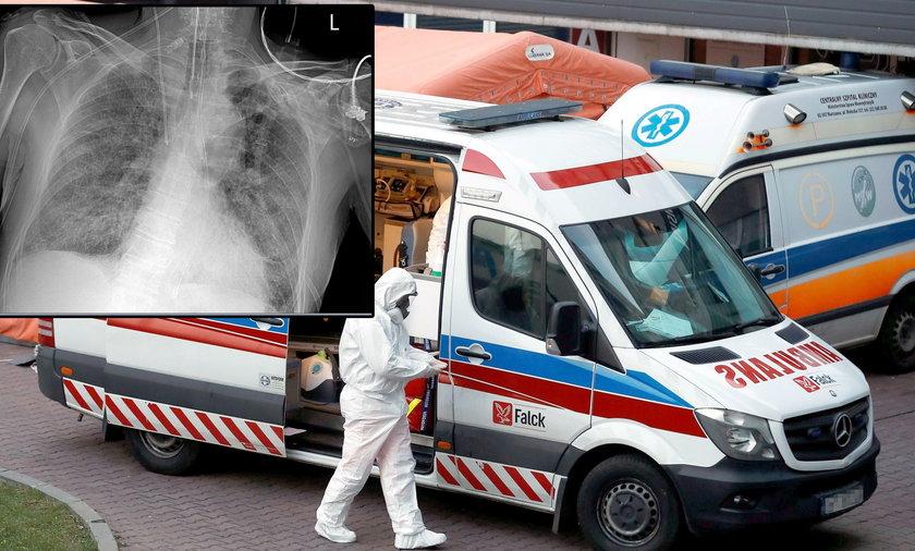 Tak COVID-19 niszczy płuca. Zdjęcia polskiego lekarza są alarmujące