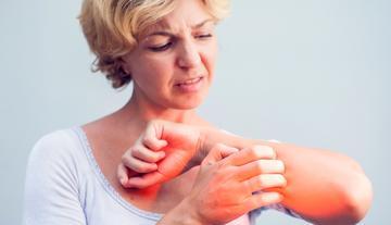 vörös foltok az ujjak kezelésén
