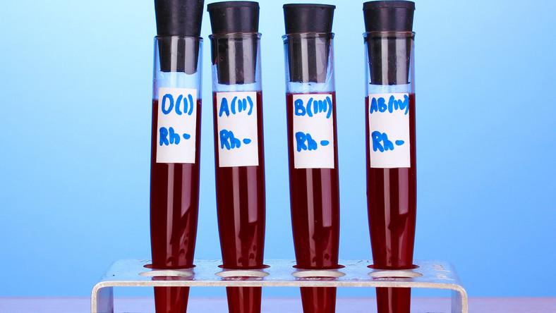 Grupa krwi AB powiązana jest ze stanem zapalnym, który może prowadzić do uszkodzeń tętnic